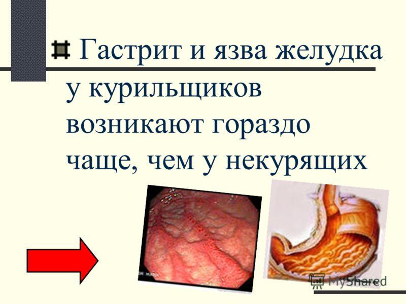Гастрит и язва желудка у курильщиков возникают гораздо чаще, чем у некурящих