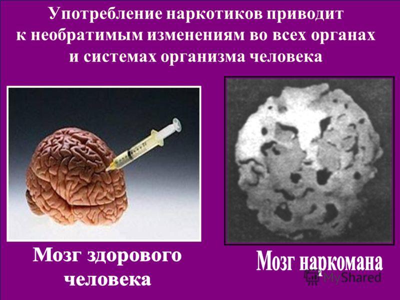 Употребление наркотиков приводит к необратимым изменениям во всех органах и системах организма человека