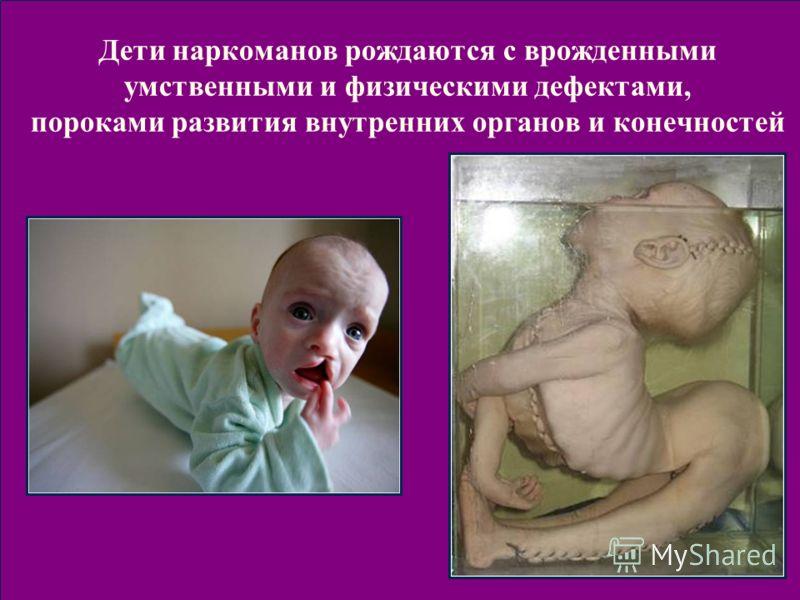 Дети наркоманов рождаются с врожденными умственными и физическими дефектами, пороками развития внутренних органов и конечностей