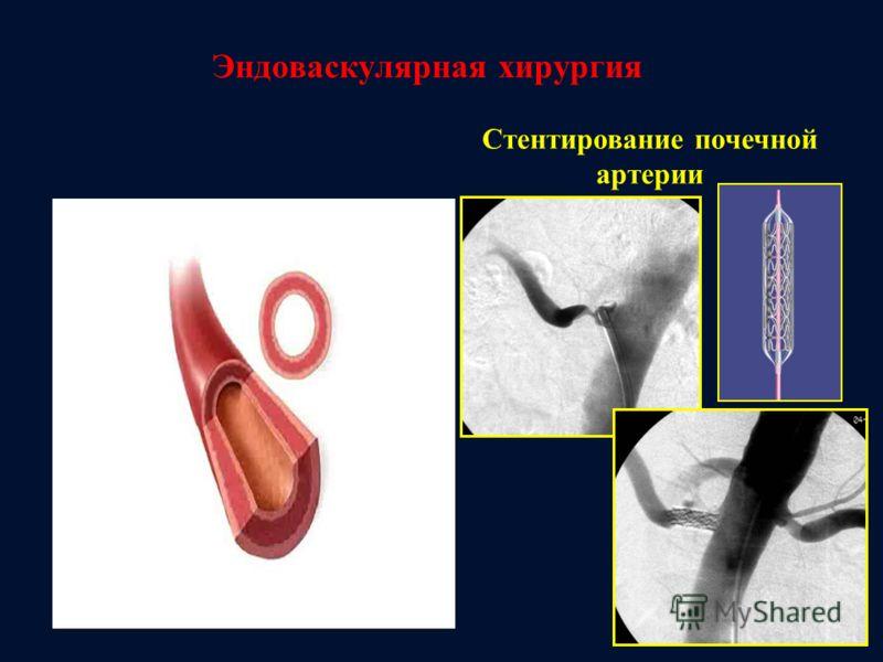 Эндоваскулярная хирургия Стентирование почечной артерии