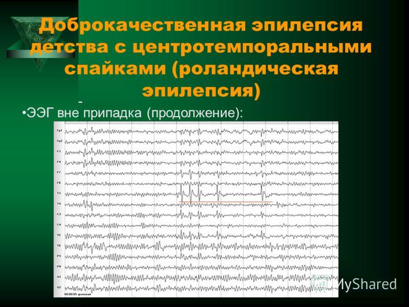 Доброкачественная эпилепсия детства с центротемпоральными спайками (роландическая эпилепсия) - ЭЭГ вне припадка (продолжение):
