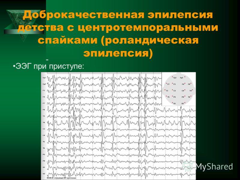 Доброкачественная эпилепсия детства с центротемпоральными спайками (роландическая эпилепсия) - ЭЭГ при приступе: