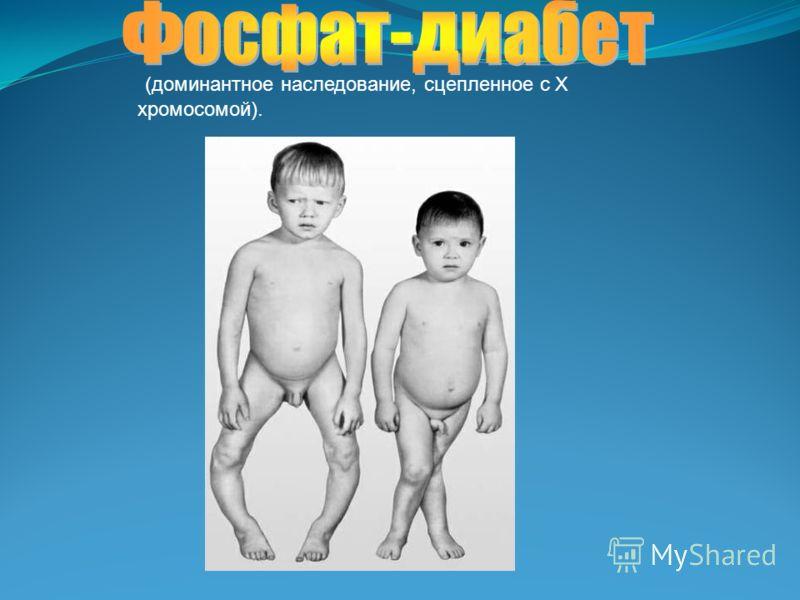 (доминантное наследование, сцепленное с Х хромосомой).