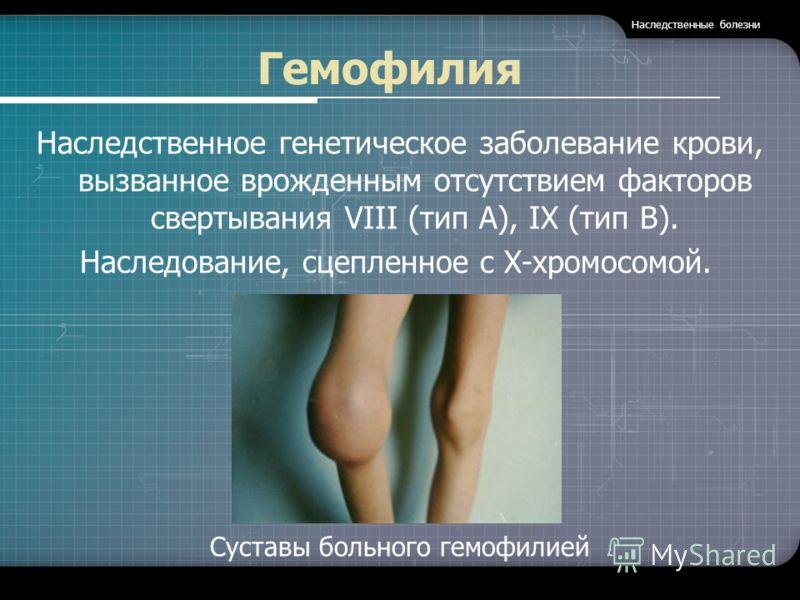 Гемофилия Наследственное генетическое заболевание крови, вызванное врожденным отсутствием факторов свертывания VIII (тип А), IX (тип В). Наследование, сцепленное с Х-хромосомой. Суставы больного гемофилией Наследственные болезни