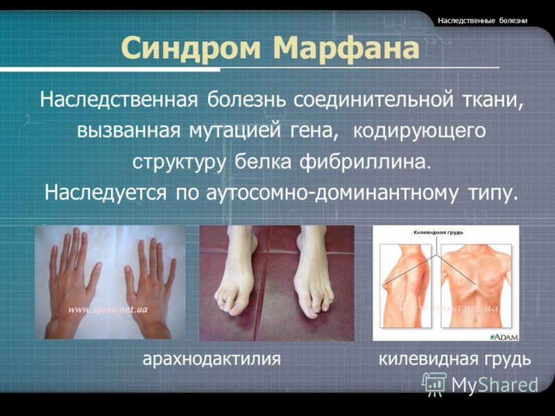 Синдром Марфана Наследственная болезнь соединительной ткани, вызванная мутацией гена, кодирующего структуру белка фибриллина. Наследуется по аутосомно-доминантному типу. арахнодактилия килевидная грудь Наследственные болезни