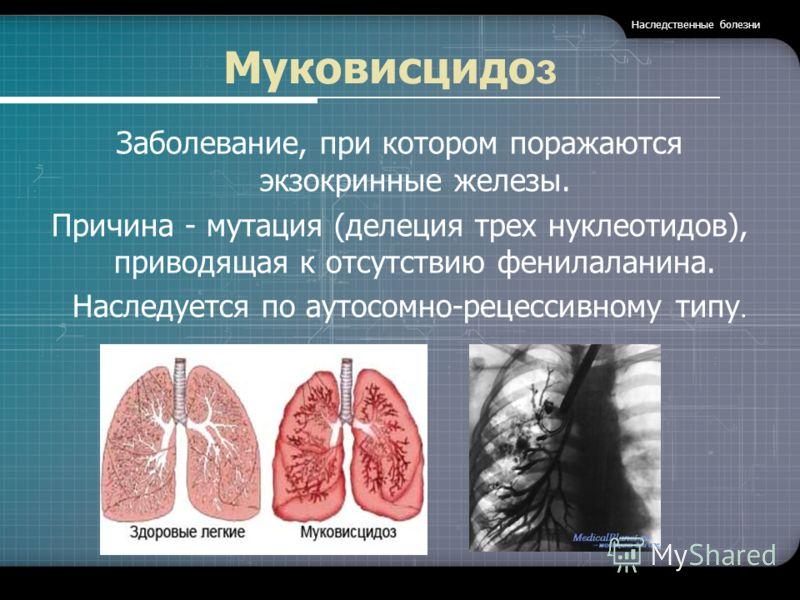 Муковисцидо з Заболевание, при котором поражаются экзокринные железы. Причина - мутация (делеция трех нуклеотидов), приводящая к отсутствию фенилаланина. Наследуется по аутосомно-рецессивному типу. Наследственные болезни