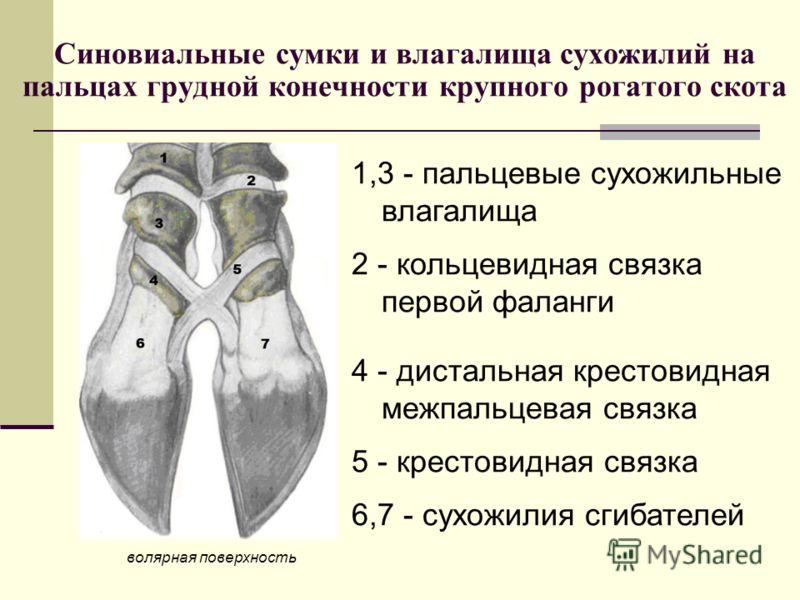 Синовиальные сумки и влагалища сухожилий на пальцах грудной конечности крупного рогатого скота волярная поверхность 1,3 - пальцевые сухожильные влагалища 2 - кольцевидная связка первой фаланги 4 - дистальная крестовидная межпальцевая связка 5 - крест