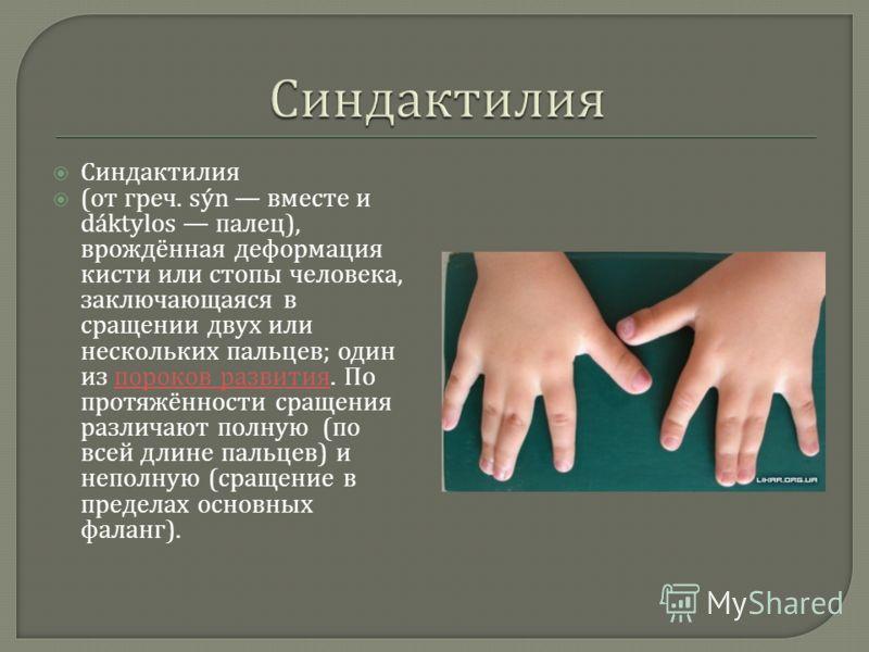 Синдактилия ( от греч. sýn вместе и dáktylos палец ), врождённая деформация кисти или стопы человека, заключающаяся в сращении двух или нескольких пальцев ; один из пороков развития. По протяжённости сращения различают полную ( по всей длине пальцев