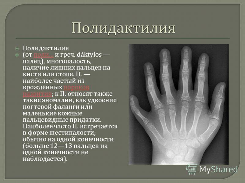 Полидактилия ( от поли... и греч. dáktylos палец ), многопалость, наличие лишних пальцев на кисти или стопе. П. наиболее частый из врождённых пороков развития ; к П. относят также такие аномалии, как удвоение ногтевой фаланги или маленькие кожные пал