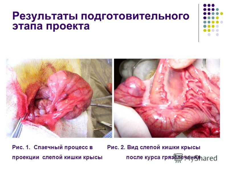 Результаты подготовительного этапа проекта Рис. 1. Спаечный процесс в Рис. 2. Вид слепой кишки крысы проекции слепой кишки крысы после курса грязелечения