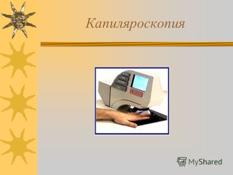 Капиляроскопия
