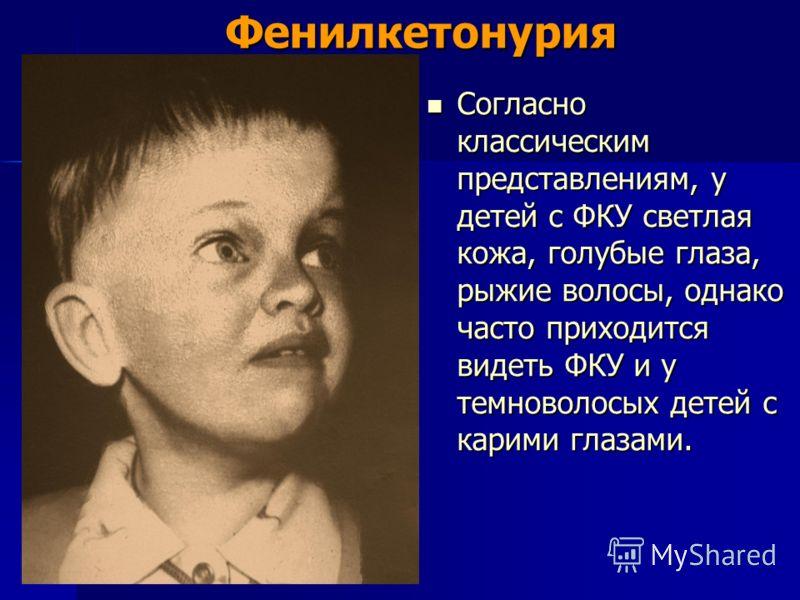 Фенилкетонурия Согласно классическим представлениям, у детей с ФКУ светлая кожа, голубые глаза, рыжие волосы, однако часто приходится видеть ФКУ и у темноволосых детей с карими глазами. Согласно классическим представлениям, у детей с ФКУ светлая кожа