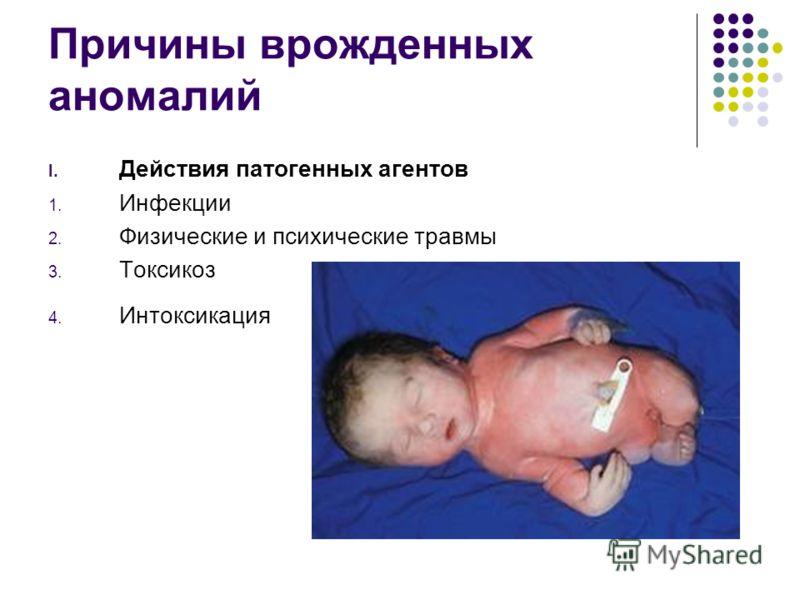 Причины врожденных аномалий I. Действия патогенных агентов 1. Инфекции 2. Физические и психические травмы 3. Токсикоз 4. Интоксикация