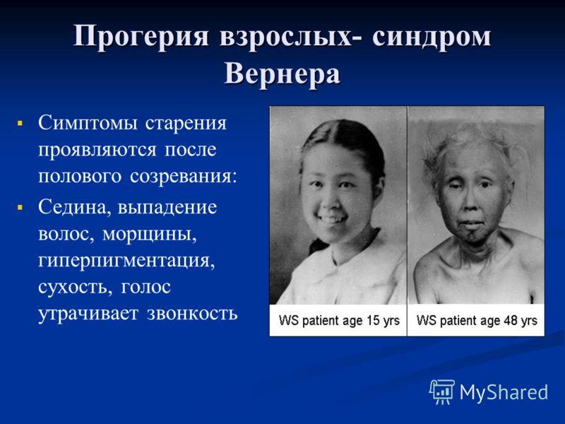 Прогерия взрослых- синдром Вернера Симптомы старения проявляются после полового созревания: Седина, выпадение волос, морщины, гиперпигментация, сухость, голос утрачивает звонкость