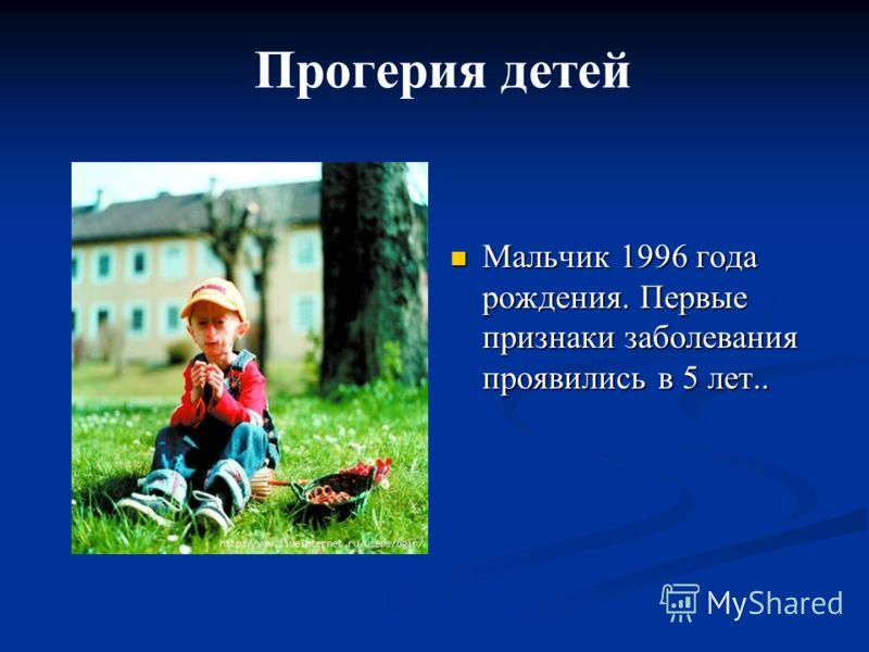 Мальчик 1996 года рождения. Первые признаки заболевания проявились в 5 лет.. Мальчик 1996 года рождения. Первые признаки заболевания проявились в 5 лет.. Прогерия детей