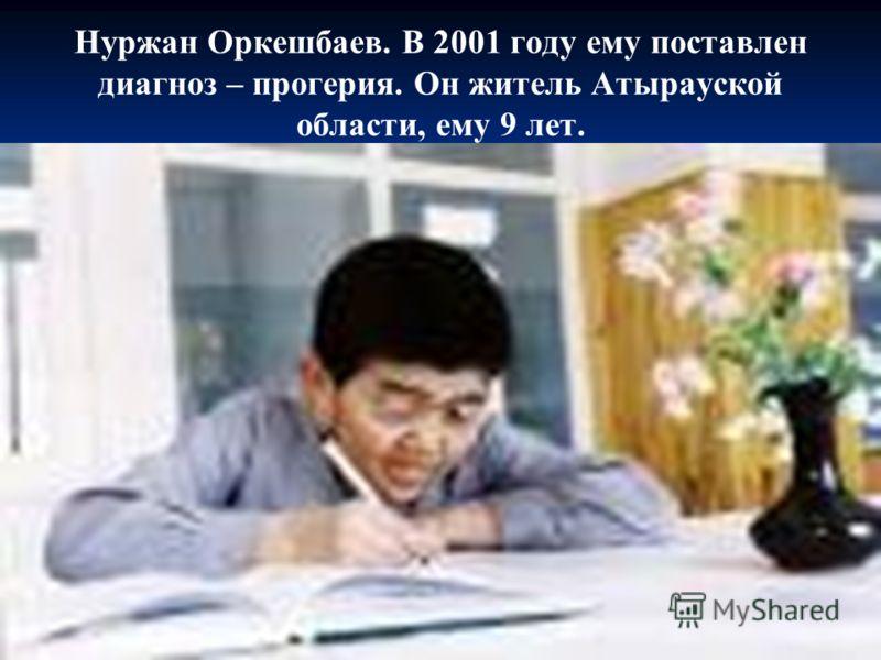 Нуржан Оркешбаев. В 2001 году ему поставлен диагноз – прогерия. Он житель Атырауской области, ему 9 лет.