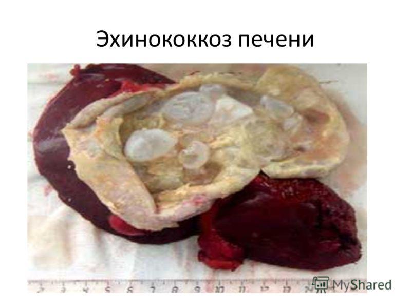 эхинококкоз печени