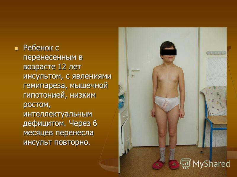 Ребенок с перенесенным в возрасте 12 лет инсультом, с явлениями гемипареза, мышечной гипотонией, низким ростом, интеллектуальным дефицитом. Через 6 месяцев перенесла инсульт повторно. Ребенок с перенесенным в возрасте 12 лет инсультом, с явлениями ге