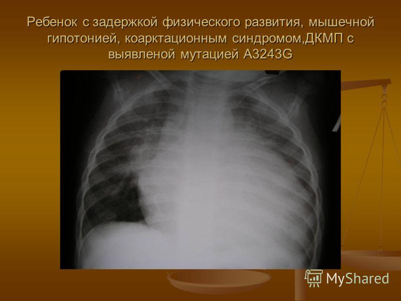 Ребенок с задержкой физического развития, мышечной гипотонией, коарктационным синдромом,ДКМП с выявленой мутацией A3243G