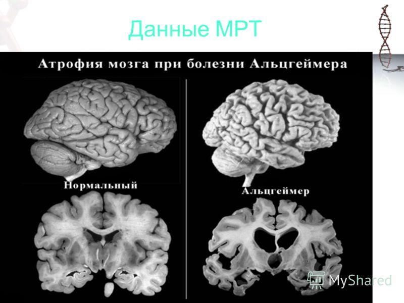 Данные МРТ