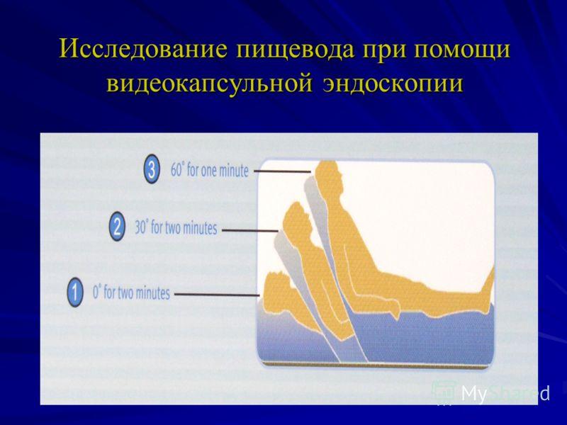 Исследование пищевода при помощи видеокапсульной эндоскопии