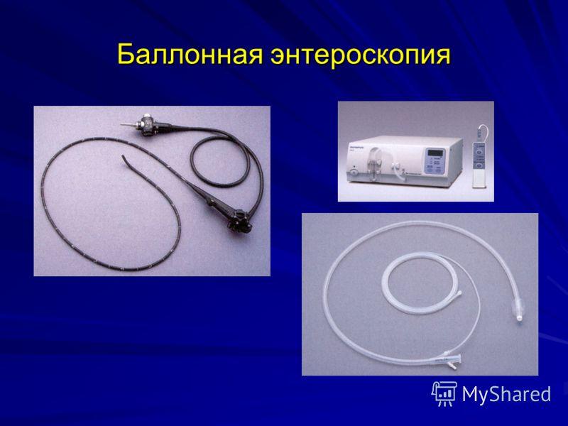 Баллонная энтероскопия