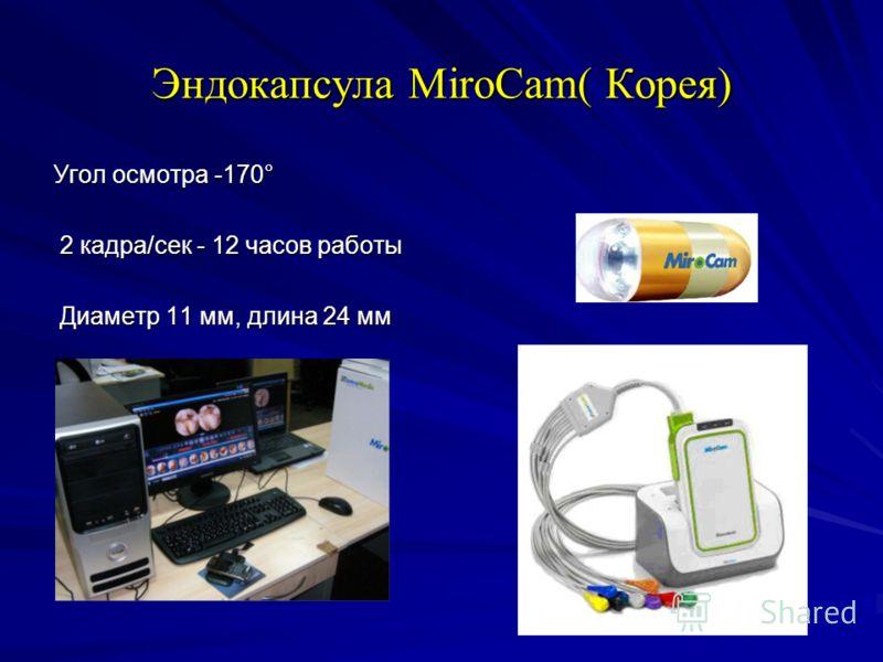 Эндокапсула MiroCam( Корея) Угол осмотра -170° 2 кадра/сек - 12 часов работы 2 кадра/сек - 12 часов работы Диаметр 11 мм, длина 24 мм Диаметр 11 мм, длина 24 мм
