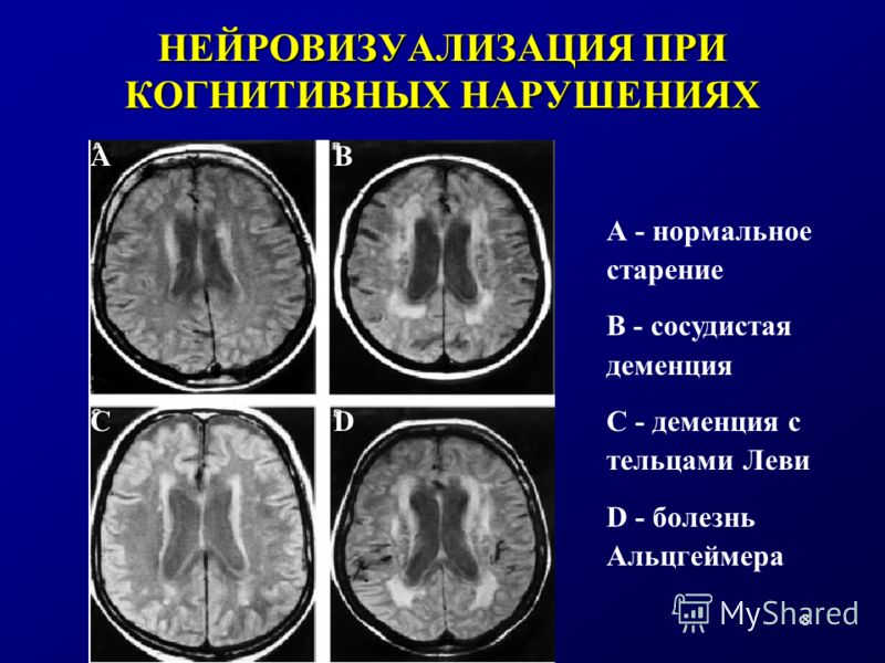 8 НЕЙРОВИЗУАЛИЗАЦИЯ ПРИ КОГНИТИВНЫХ НАРУШЕНИЯХ А - нормальное старение В - сосудистая деменция С - деменция с тельцами Леви D - болезнь Альцгеймера АВ СD