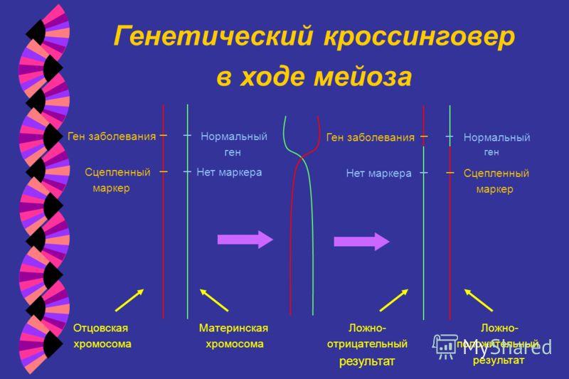 Генетический кроссинговер в ходе мейоза Ген заболевания Нормальный ген Сцепленный маркер Нет маркера Отцовская хромосома Материнская хромосома Сцепленный маркер Нормальный ген Ген заболевания Нет маркера Ложно- отрицательный результат Ложно- положите