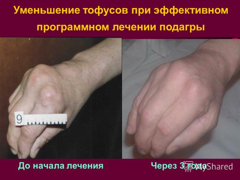До начала лечения Через 3 года Уменьшение тофусов при эффективном программном лечении подагры