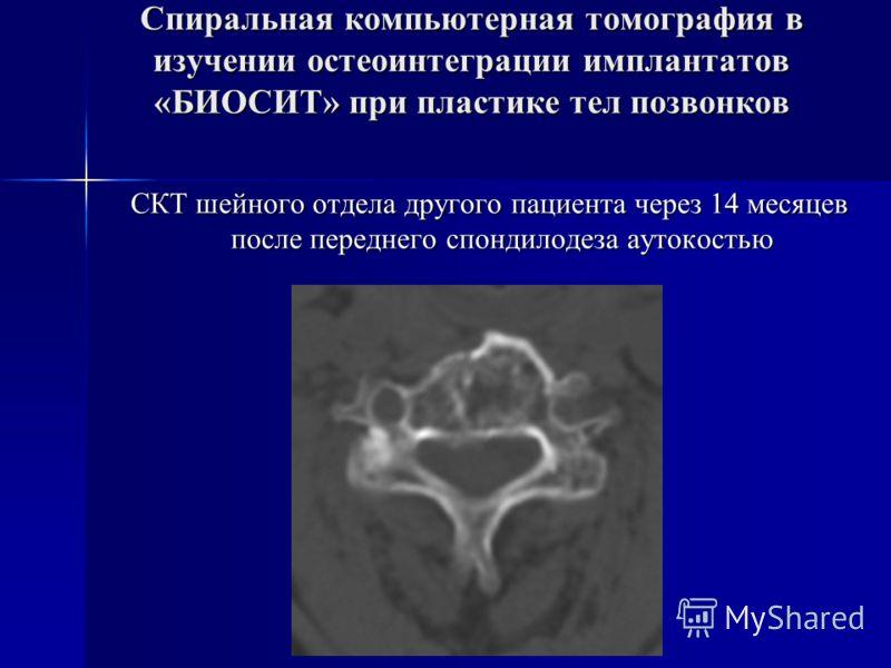 Спиральная компьютерная томография в изучении остеоинтеграции имплантатов «БИОСИТ» при пластике тел позвонков СКТ шейного отдела другого пациента через 14 месяцев после переднего спондилодеза аутокостью СКТ шейного отдела другого пациента через 14 ме