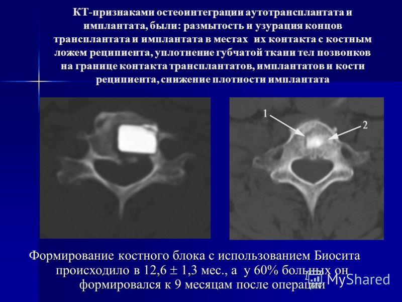 КТ-признаками остеоинтеграции аутотрансплантата и имплантата, были: размытость и узурация концов трансплантата и имплантата в местах их контакта с костным ложем реципиента, уплотнение губчатой ткани тел позвонков на границе контакта трансплантатов, и