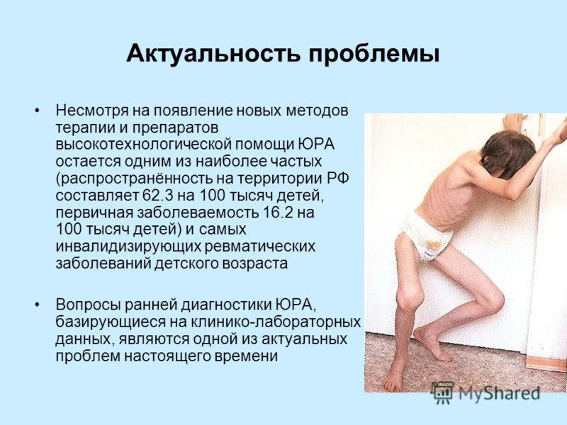 Крестцовый отдел у грудных детей