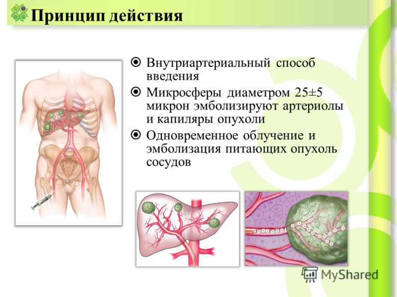 Принцип действия Внутриартериальный способ введения Микросферы диаметром 25±5 микрон эмболизируют артериолы и капиляры опухоли Одновременное облучение и эмболизация питающих опухоль сосудов