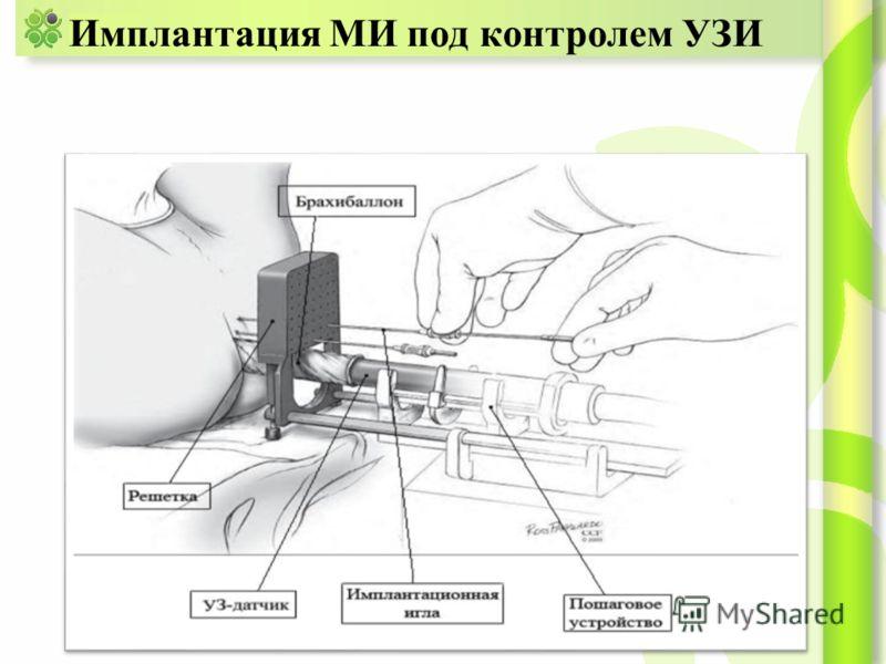 Имплантация МИ под контролем УЗИ