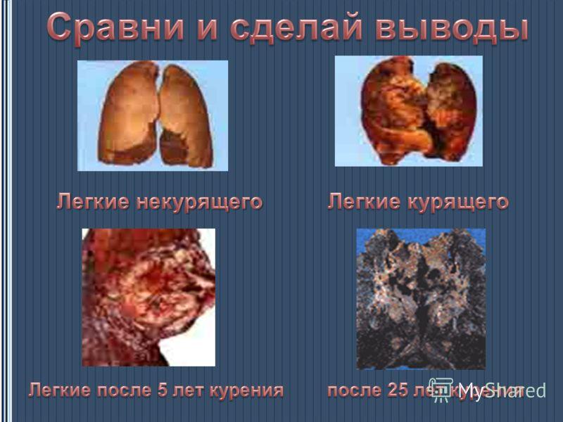 Если человек начал курить в 15 лет, продолжительность его жизни уменьшается более чем на 8 лет. Начавшие курить до 15 лет, в 5 раз чаще умирают от рака, чем те, кто начал курить после 25 лет. Уровень смертности детей при родах у курящих матерей в сре