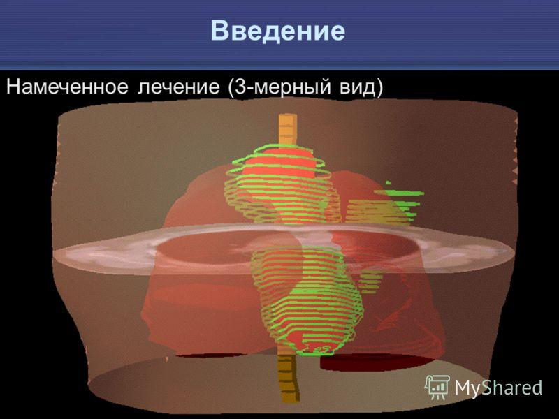 IAEA Предотвращение ошибок в лучевой терапии 10 Намеченное лечение (3-мерный вид) Введение