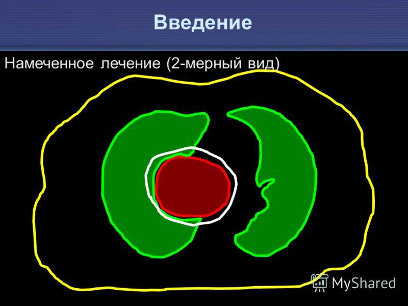 IAEA Предотвращение ошибок в лучевой терапии 9 Намеченное лечение (2-мерный вид) Введение