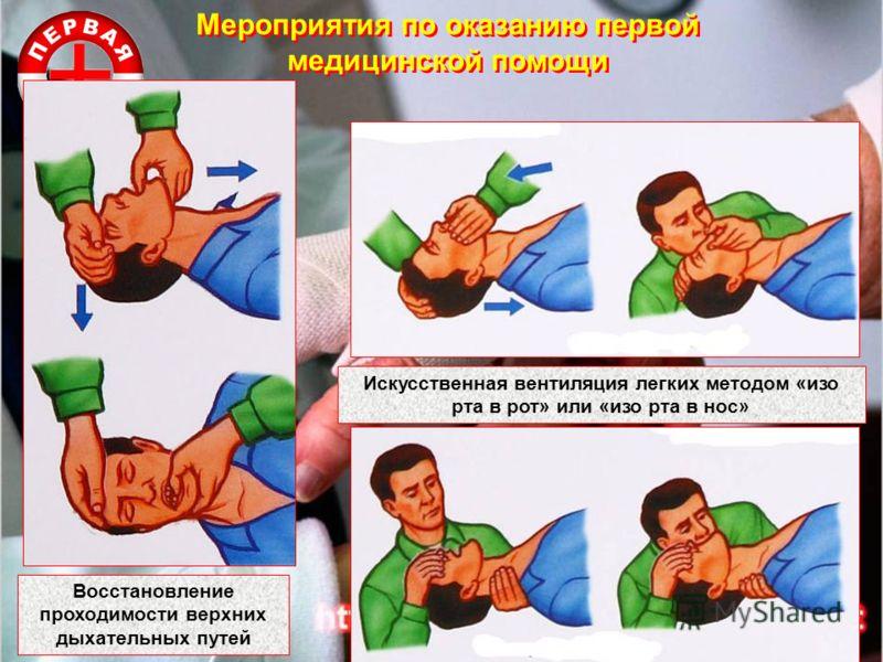 Мероприятия по оказанию первой медицинской помощи Восстановление проходимости верхних дыхательных путей Искусственная вентиляция легких методом «изо рта в рот» или «изо рта в нос»