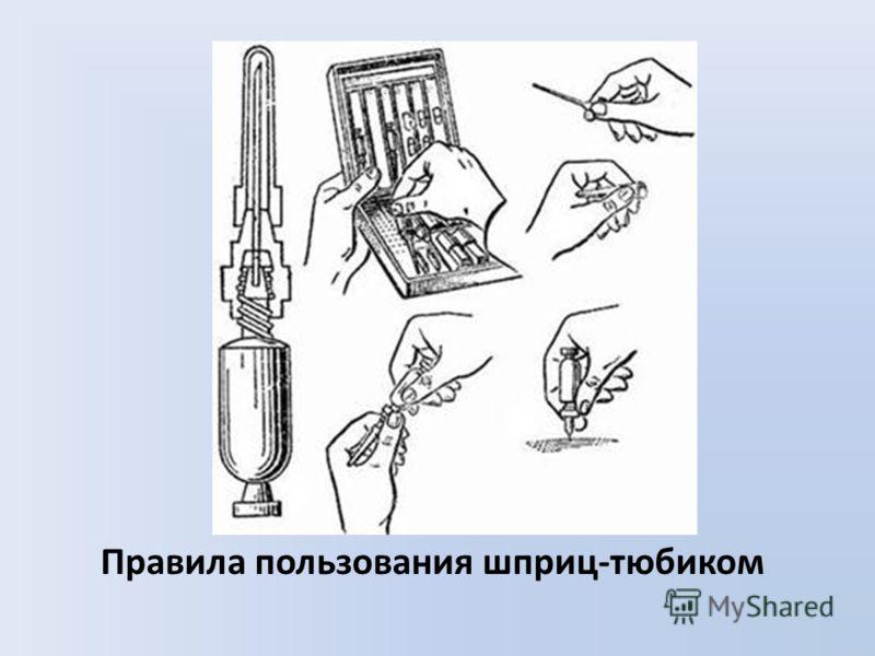 Правила пользования шприц-тюбиком