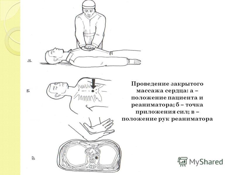 Проведение закрытого массажа сердца: а – положение пациента и реаниматора; б – точка приложения сил; в – положение рук реаниматора