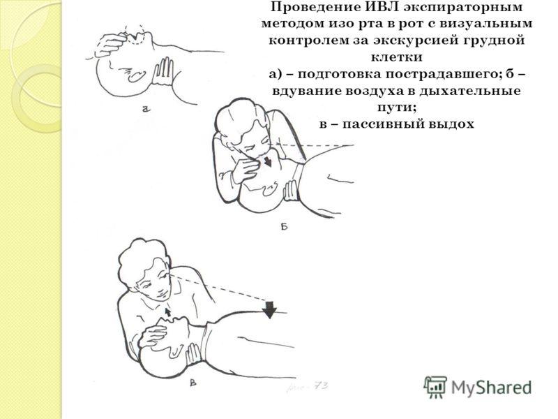 Проведение ИВЛ экспираторным методом изо рта в рот с визуальным контролем за экскурсией грудной клетки а) – подготовка пострадавшего; б – вдувание воздуха в дыхательные пути; в – пассивный выдох