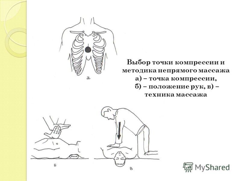 Выбор точки компрессии и методика непрямого массажа а) – точка компрессии, б) – положение рук, в) – техника массажа