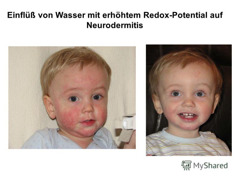 Einflüß von Wasser mit erhöhtem Redox-Potential auf Neurodermitis