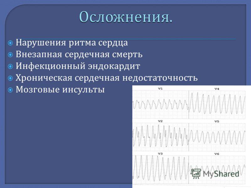 Нарушения ритма сердца Внезапная сердечная смерть Инфекционный эндокардит Хроническая сердечная недостаточность Мозговые инсульты