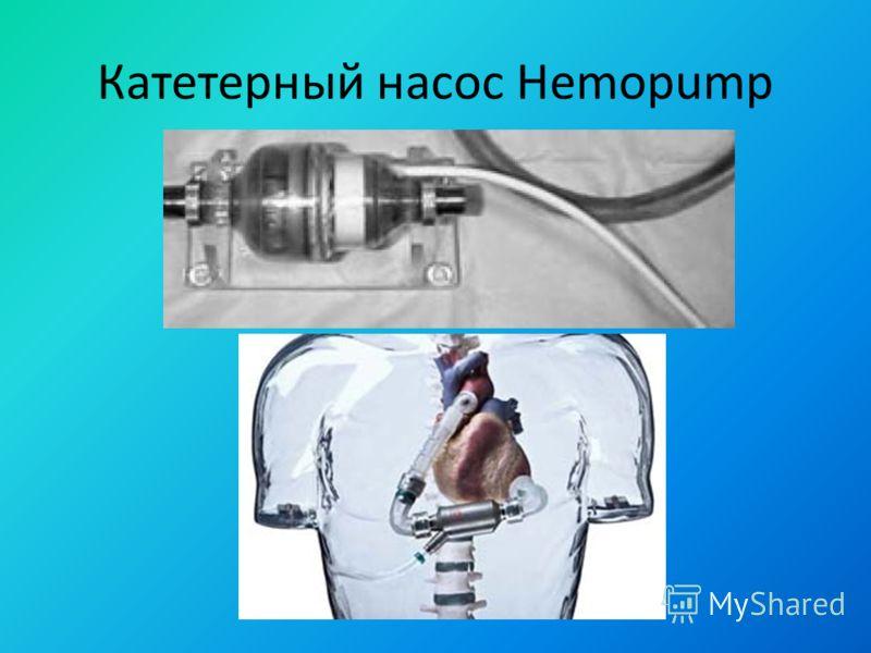Катетерный насос Hemopump