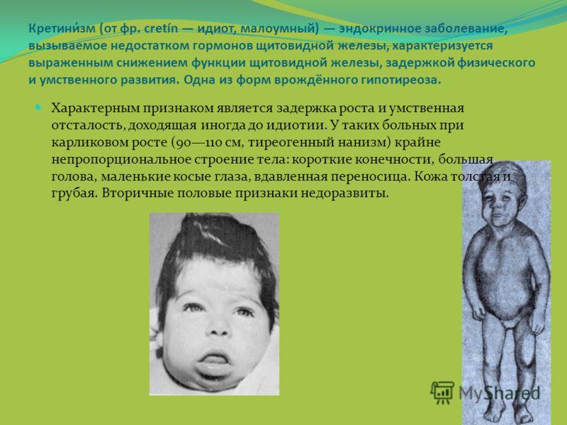 Кретини́зм (от фр. cretín идиот, малоумный) эндокринное заболевание, вызываемое недостатком гормонов щитовидной железы, характеризуется выраженным снижением функции щитовидной железы, задержкой физического и умственного развития. Одна из форм врождён