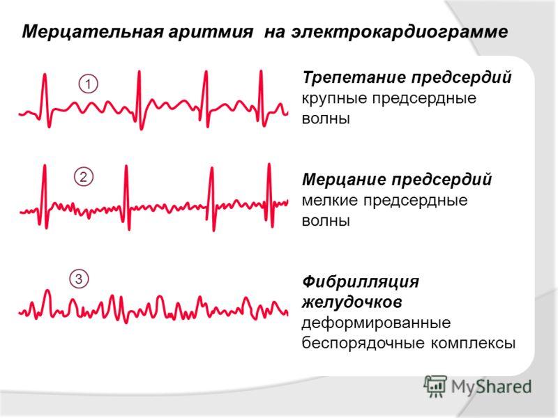 Мерцательная аритмия на электрокардиограмме 1 2 3 Трепетание предсердий крупные предсердные волны Мерцание предсердий мелкие предсердные волны Фибрилляция желудочков деформированные беспорядочные комплексы