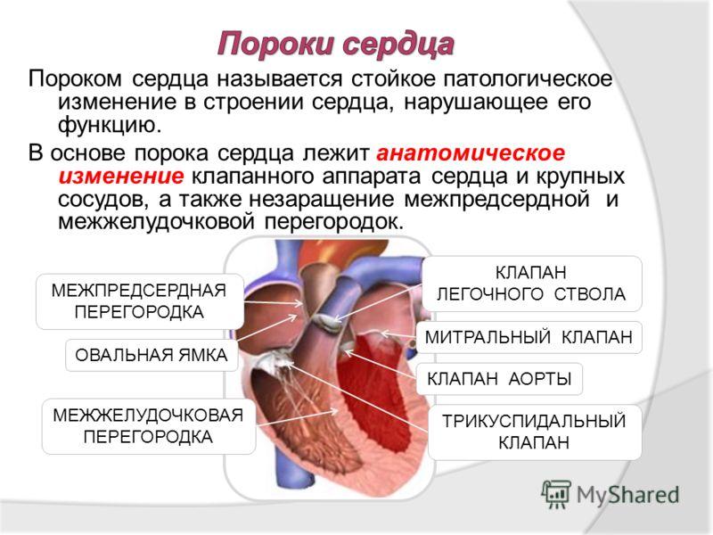 Пороком сердца называется стойкое патологическое изменение в строении сердца, нарушающее его функцию. В основе порока сердца лежит анатомическое изменение клапанного аппарата сердца и крупных сосудов, а также незаращение межпредсердной и межжелудочко