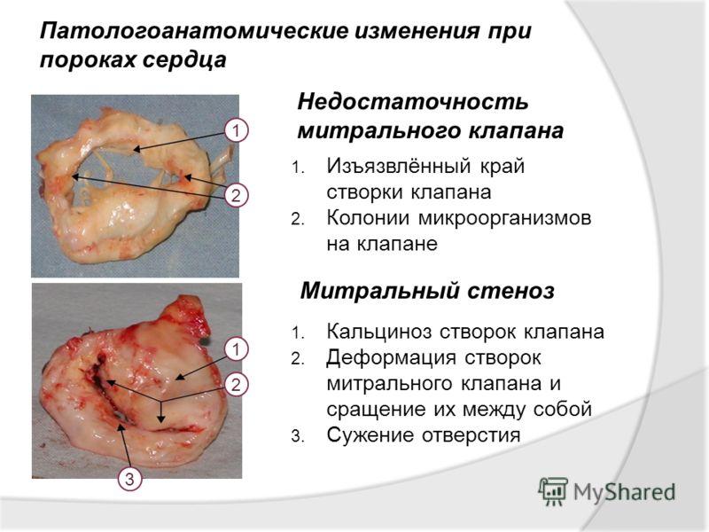 Патологоанатомические изменения при пороках сердца 1. Изъязвлённый край створки клапана 2. Колонии микроорганизмов на клапане Недостаточность митрального клапана Митральный стеноз 1. Кальциноз створок клапана 2. Деформация створок митрального клапана